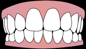 Copy Dent
