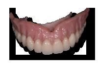 copy-dentures1