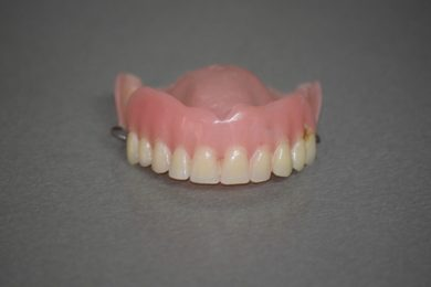 How Dentures have changed